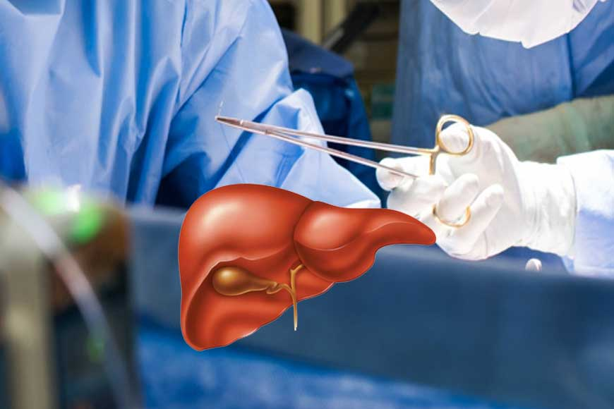 Good News! Kolkata gets 4th Liver Transplant Unit