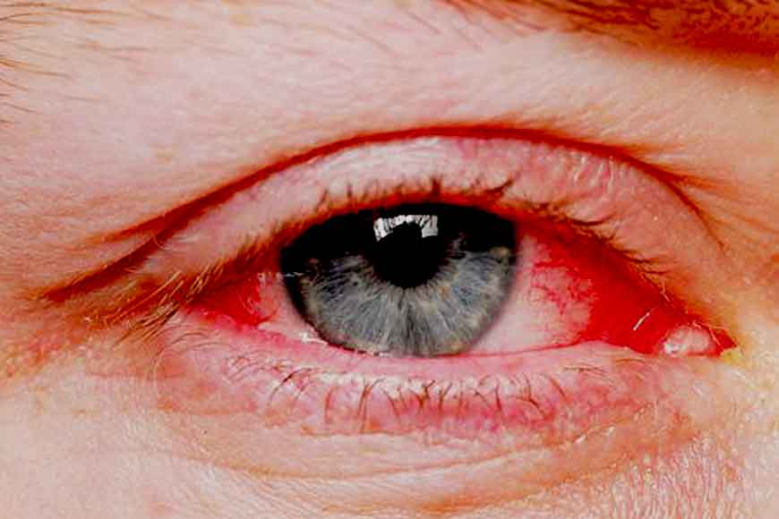 Blood Shot eyes, rupture of blood vessels, new monsoon disease hits Kolkata