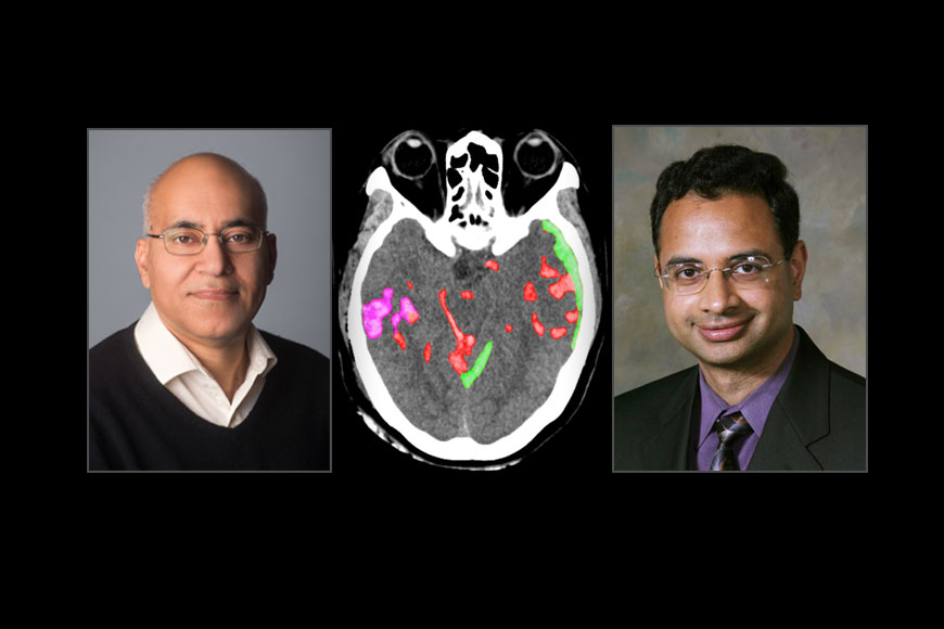 Bengali scientist Pratik Mukherjee's AI to detect brain haemorrhage in seconds and save lives!