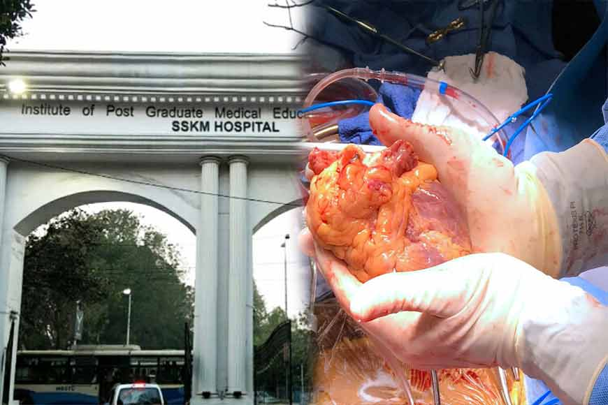 looking back Today SSKM Hospital created history with first heart transplant